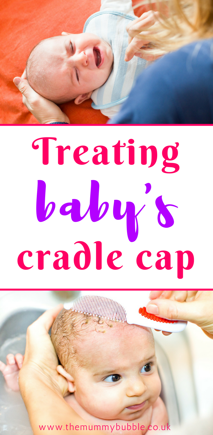 Treating baby cradle cap