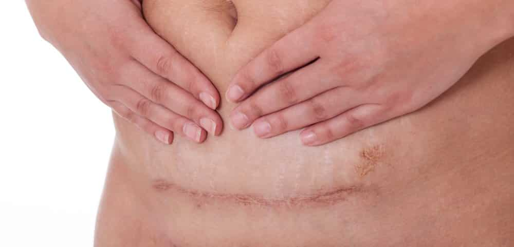 C-Section scar recovery tips